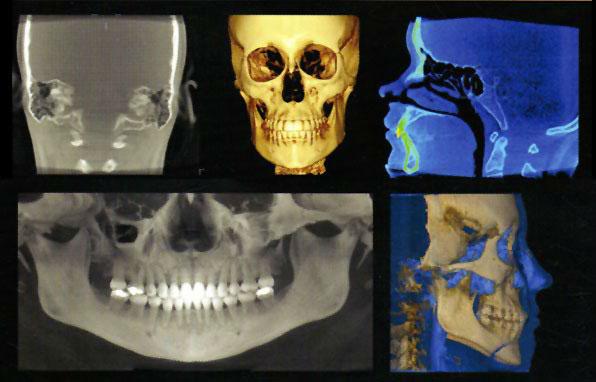 tomograf stomatologiczny